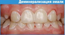 Повышенная чувствительность зубов. . Лечение гиперестезии.