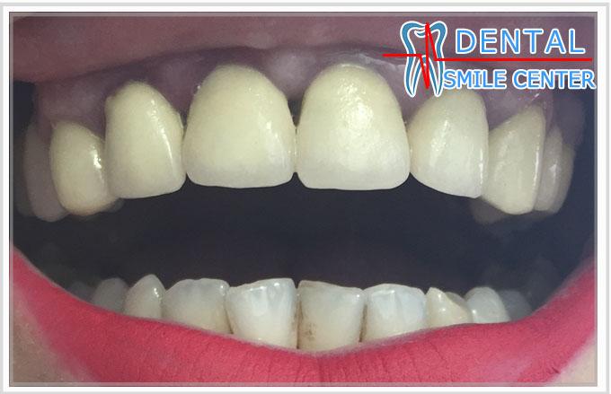 ли зубы под виниры