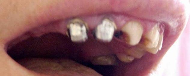 Рано рассосались корешки на молочных зубах