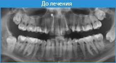 Как настроится на удаление зуба мудрости
