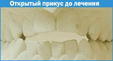 отбеливание зубов филипс зум