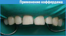 Как отбеливать зубы после установки пломб  MedikForumru