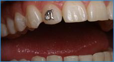 Как в домашних условиях подпилить зубы 572