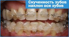 Правильный номер зубов