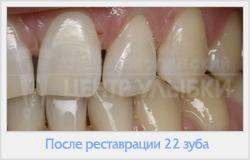 можно ли поставить виниры если нет зуба
