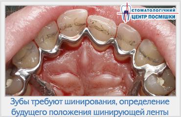 шинирование двух жевательных групп зубов называется стабилизацией боксу позволяет