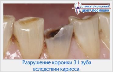 Выпала часть зуба без крови