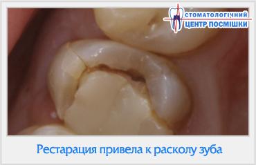Если раскололся зуб можно ли восстановить его