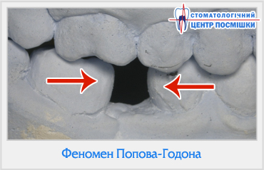 Феномен Попова-Годона