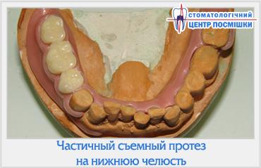 Частичный съемный протез на нижнюю челюсть