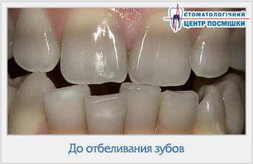 Повышение температуры при больных зубах