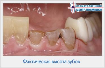Чем можно отбелить нарощенный зуб