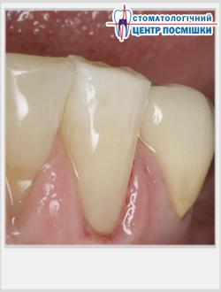 Временная чувствительность зубов