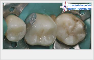Как почистить зубы от темного налета
