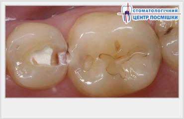 Дырка в зубе причины появления, лечение и профилактика 41