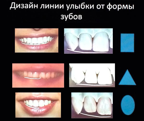 d2a06b8771719 Сравнительная характеристика различных типов зубов. Описание треугольных,  прямоугольных и овальных зубов. Прямоугольные (квадратные) зубы.