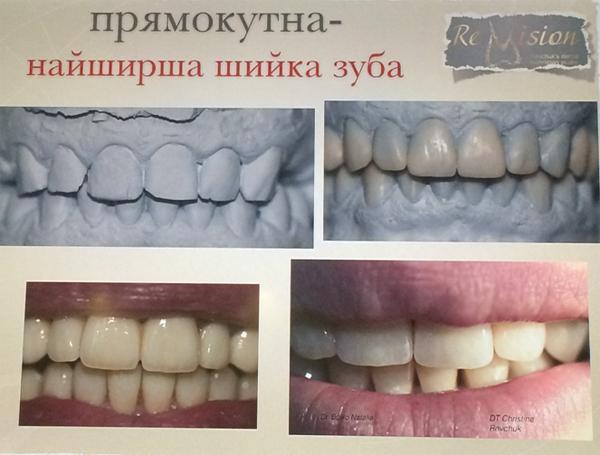 5dfa2d3a00c9b В прямоугольной форме зубов десневой сосочек выражен минимально, поэтому  препаровка зубов должна выполняться только с уступом, для предотвращения  возможной ...