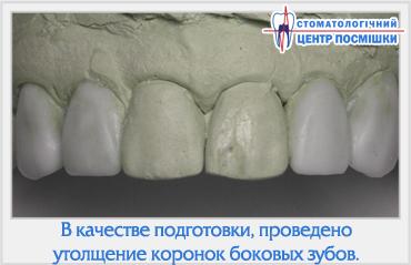 Коронка если при потери зуба
