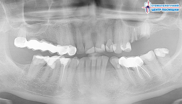 Снимки зубов дыбенко