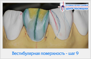 Вестибулярная поверхность передних зубов