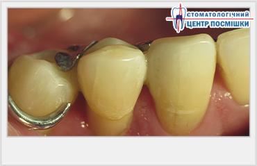 внутрикоронковое отбеливание депульпированного зуба