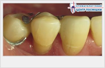 эстетическое отбеливание зубов