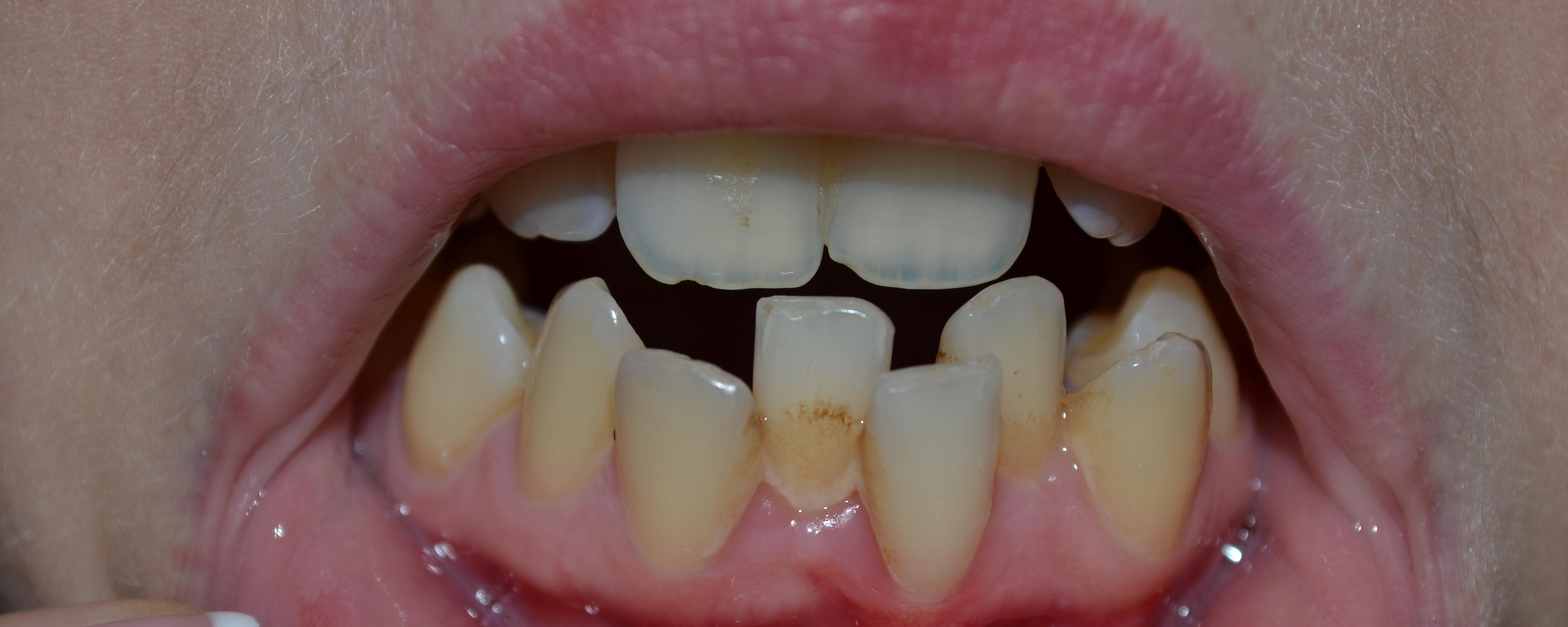 Лазерное отбеливание зубов подольск