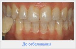 ночное отбеливание зубов