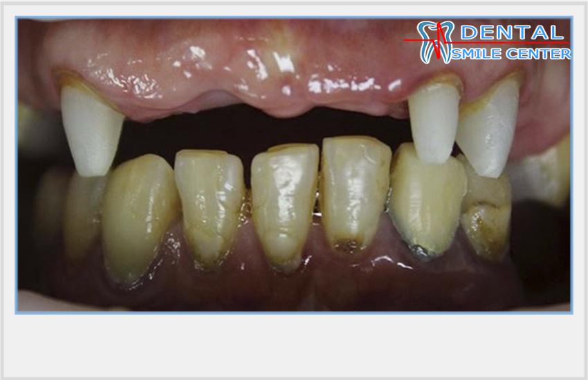 Дни февраля для лечения зубов