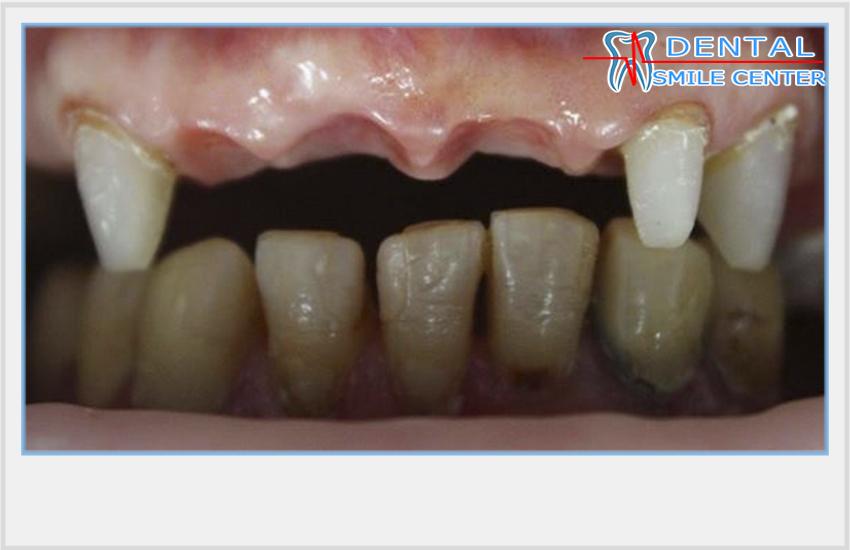 Шатаются зубы вместе с коронкой
