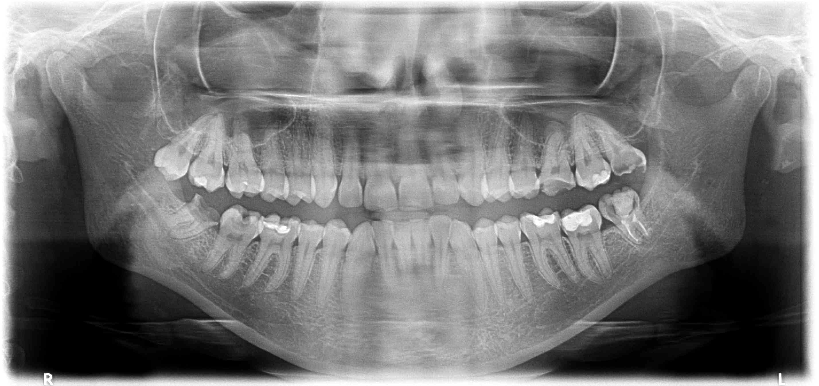 трещина корня зуба на снимке