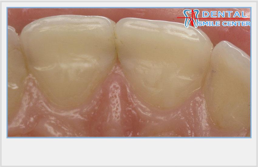 Если приснилось что нет передних зубов