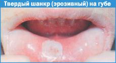 шанкр фото во рту