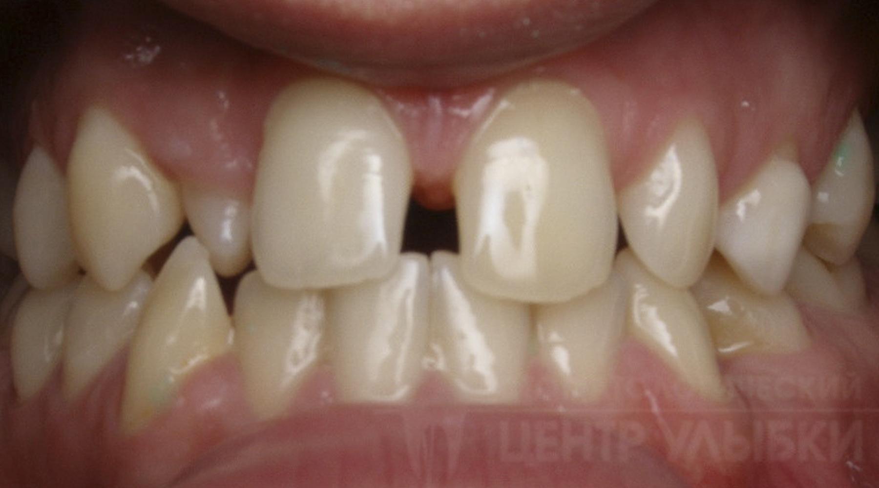 зубные виниры на алиэкспресс
